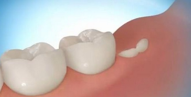 rost-novyh-zubov-v-tretij-raz-u-pozhilyh-lyudej