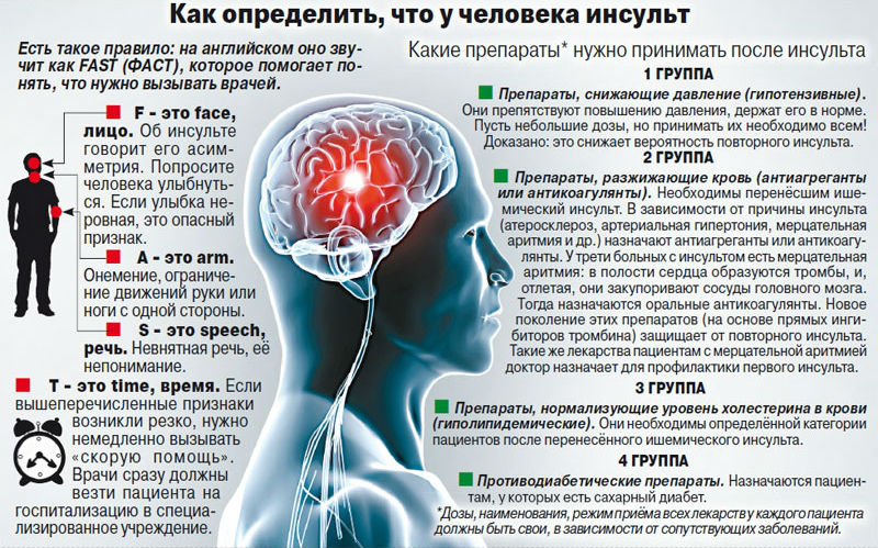 priznaki-i-simptomy-insulta-u-muzhchin-i-zhenshhin-kak-opredelit-insult