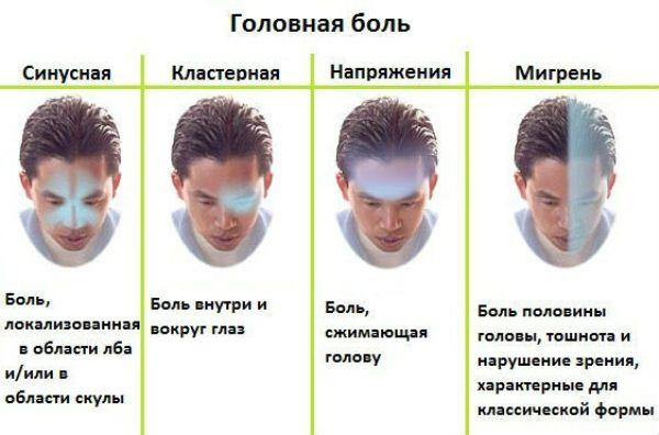 gajmorit-golovnaya-bol-pri-gajmorite-shema-osnovnye-vidy-golovnoj-boli