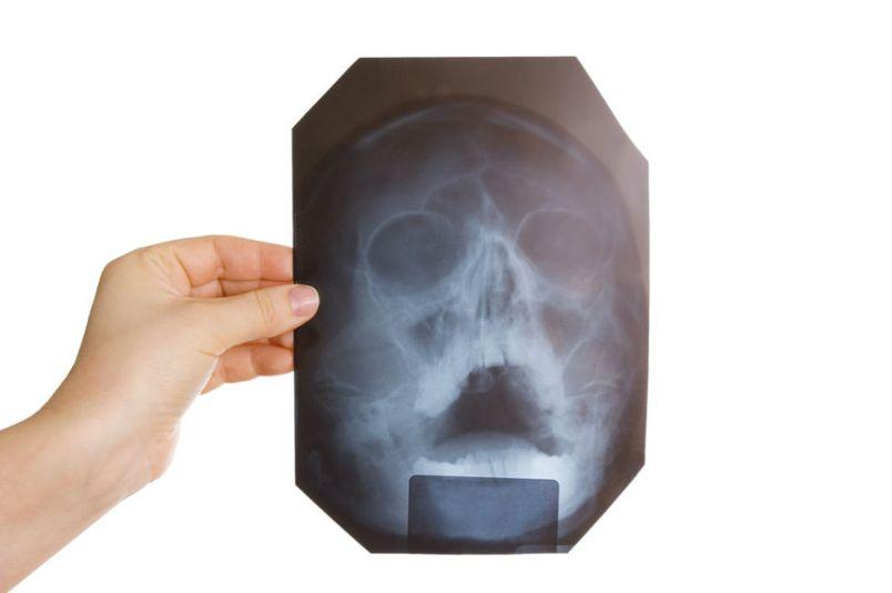 gajmorit-golovnaya-bol-pri-gajmorite-simptomy-i-lechenie-rentgenografiya-diagnostika