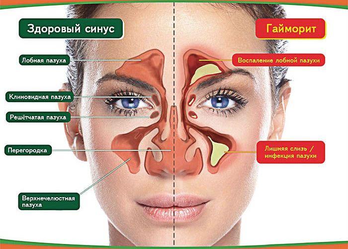 gajmorit-golovnaya-bol-pri-gajmorite-simptomy-i-lechenie-shema-okolonosnye-pazuhi