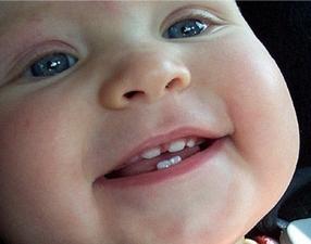 prorezyvanie-zubov-u-detej-foto-desna-i-pervye-zuby