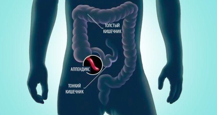 osnovnye-simptomy-appenditsita-gde-nahoditsya-appenditsit-kak-sebya-proyavlyaet-opisanie-s-foto...