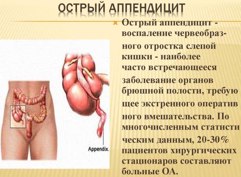 osnovnye-simptomy-appenditsita-opisanie-foto