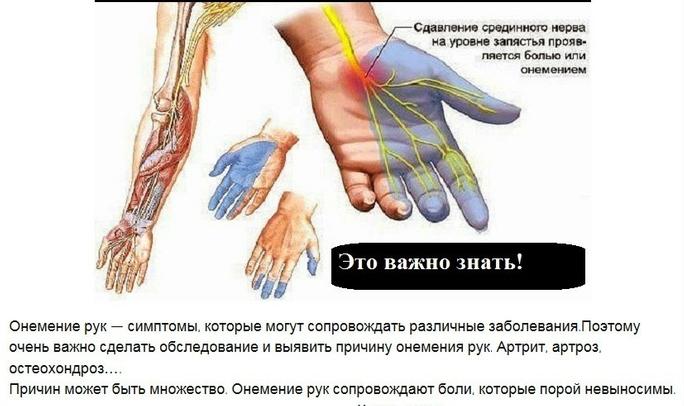 onemenie-ruk-i-nog-osnovnye-prichiny-foto-onemenie-ruk-simptomy-i-lechenie