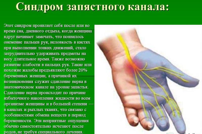 onemenie-ruk-i-nog-osnovnye-prichiny-foto-sindrom-zapyastnogo-kanala