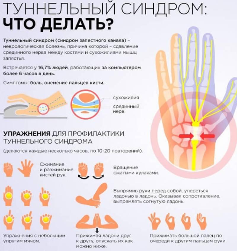 onemenie-ruk-i-nog-osnovnye-prichiny-foto-tablitsa-tunnelnyj-sindrom-chto-delat