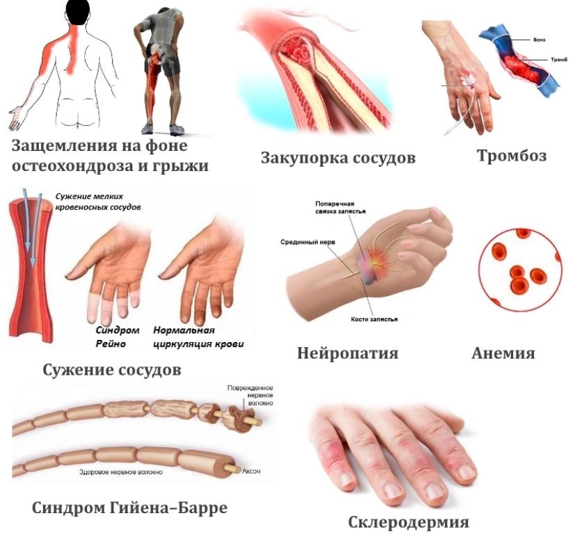 onemenie-ruk-i-nog-osnovnye-prichiny-foto-zabolevaniya-kak-prichiny-onemeniya-ruk-i-nog