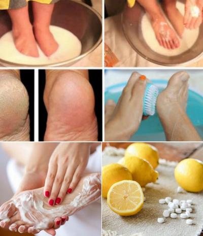 kak-izbavitsya-ot-gribka-mozolej-i-natoptyshej-na-nogah-s-pomoshhyu-aspirina-foto-aspirin-i-limon...