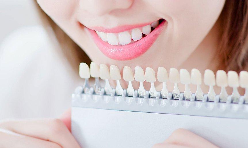 6-zabluzhdenij-ob-otbelivanii-zubov-kotorye-mogut-navredit-zdorovyu-i-koshelku-foto