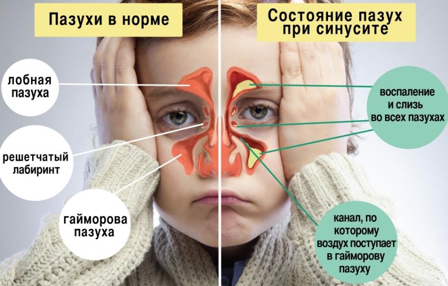 sinusit-chto-nelzya-est-pri-sinusite-rasskazali-eksperty-kakie-produkty-i-blyuda-nuzhno-isklyuchit-iz-pitaniya-foto-simptomy-sinusita
