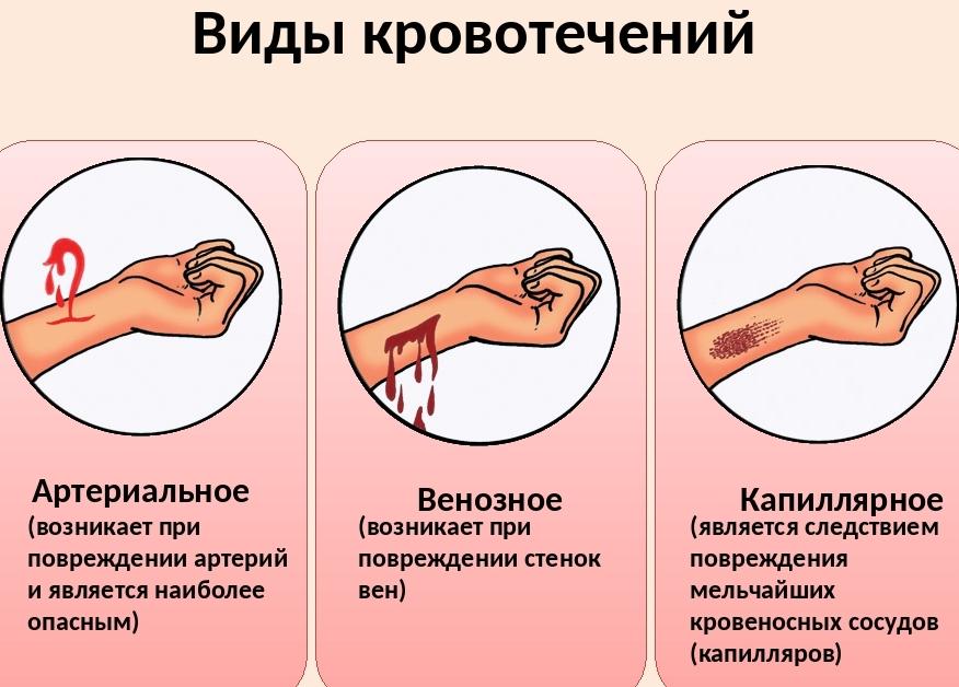 chem-otlichaetsya-venoznaya-krov-ot-arterialnoj-raznitsa-i-otlichie-klassifikatsiya-krovotechenij-shema