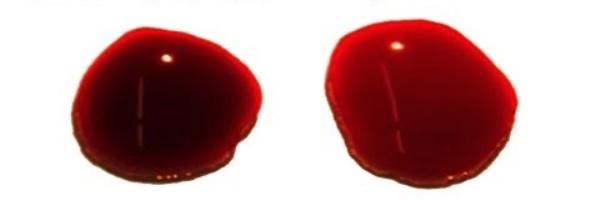 chem-otlichaetsya-venoznaya-krov-ot-arterialnoj-raznitsa-i-otlichie-venoznaya-krov-temnaya-i-arterialnaya-svetlaya-foto